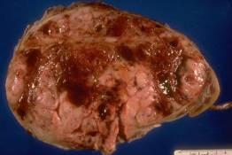 PP 9 - Wilms' tumor