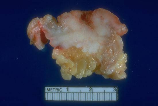 Gastrointestinal Colorectal Neoplasms Resources Dept Of Laboratory Medicine Pathology Uw Medicine