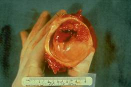 FR 1 Invasive Cervical Carcinoma