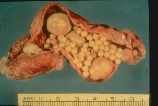Gastrointestinal Gall Bladder Bile Ducts Pancreas