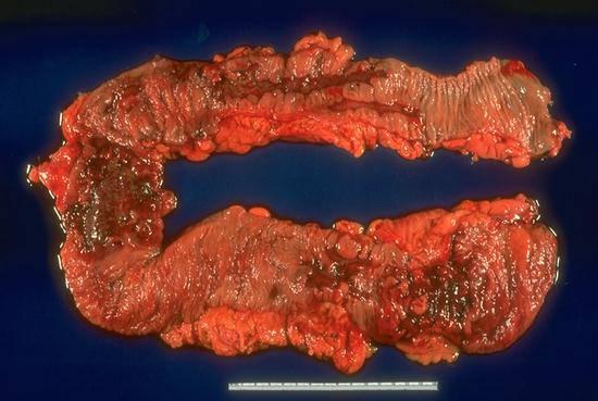 crohns disease term paper Crohn's disease: introduction crohn's disease is a form of inflammatory bowel disease the term crohn's disease has replaced older terms.