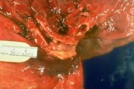 RS 41 Carcinoid tumor