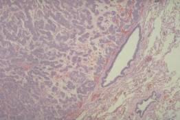 RS 42 Carcinoid tumor